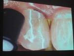 成人矯正では移動中に元からあった虫歯をみつけることもあります