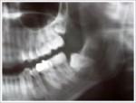 おそらく智歯周囲炎だと思います。