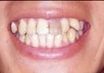 完全には死んでいない歯の漂白について