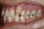 歯が壊れる理由は力と汚れです