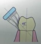 歯磨きの角度について