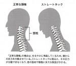 交通事故による首の痛み頭痛、声が出ない
