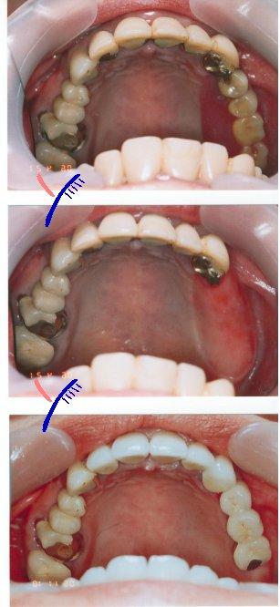 歯科インプラントと入れ歯の違い