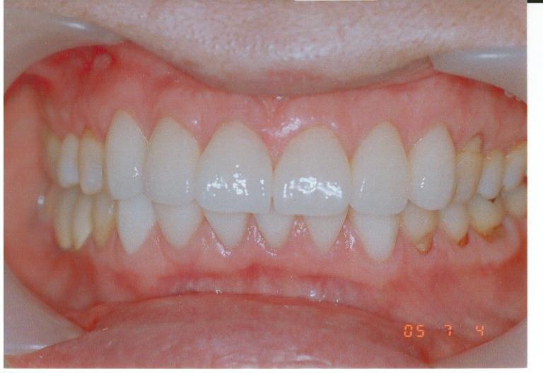 差し歯も大切なご自身のお身体の一部ですね