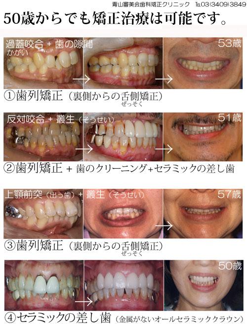 歯の矯正は、歯ぐきがしっかりしていれば何歳でも可能