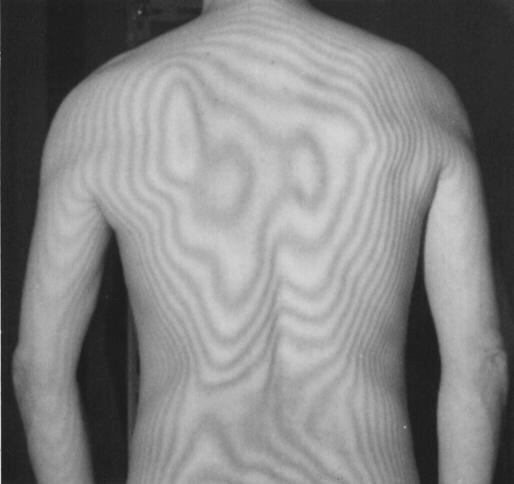交通事故後遺症と「身体のゆがみ」