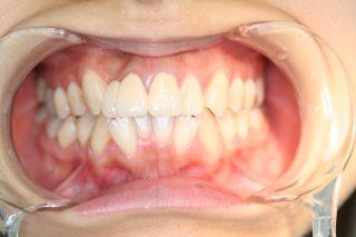 歯ぐきの黒さ。