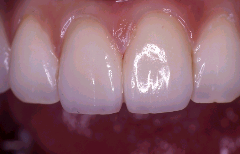 前歯2本の矯正