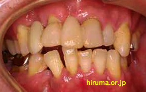 歯周病の管理が必要です