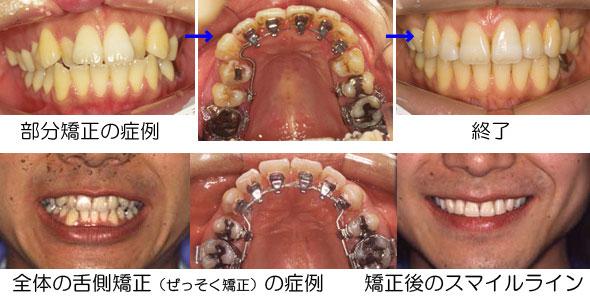 Re:30歳以上の八重歯の矯正