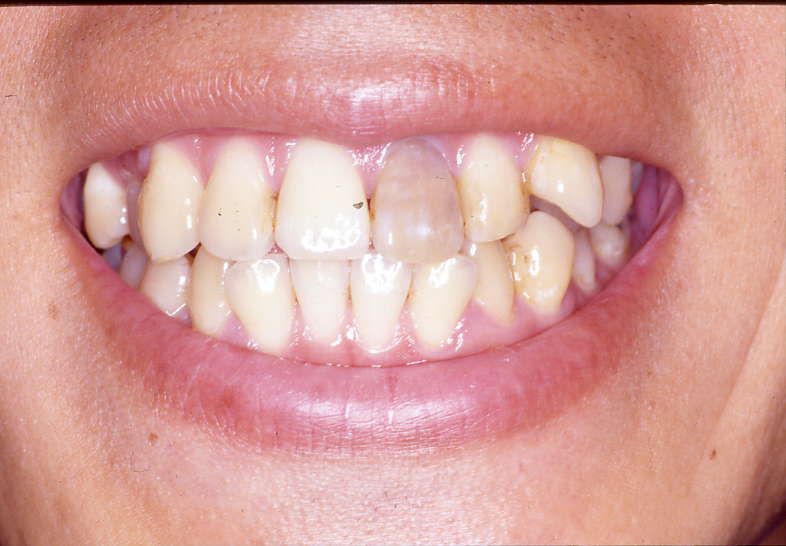 神経がない歯を白くする方法