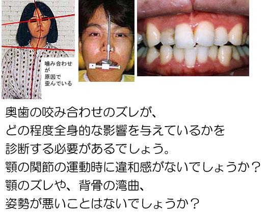 Re:奥歯の反対咬合矯正は必要ですか?