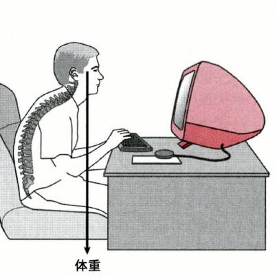 IT猫背による頭痛・首肩こりが急増中!