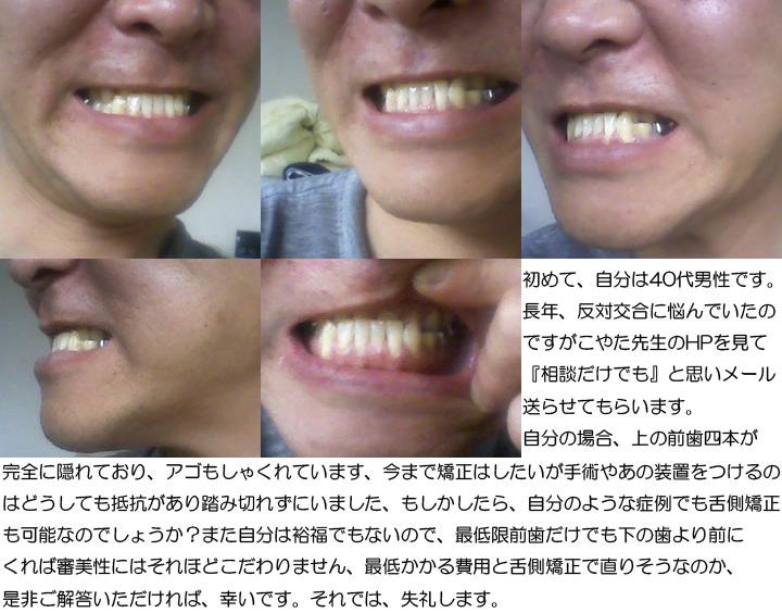 反対交合、しゃっくれに悩み、舌側矯正は可能で(40歳男性