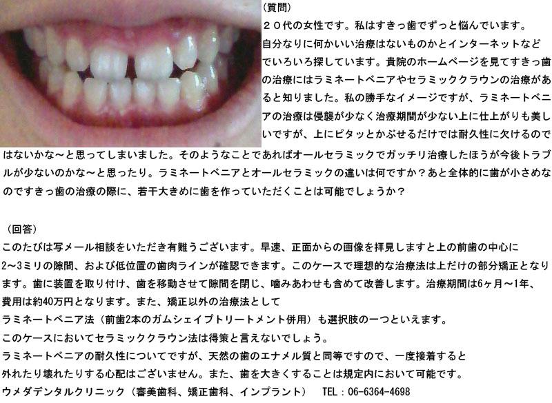 (写真)ラミネートベニアとオールセラミックの違いは?すきっ歯で