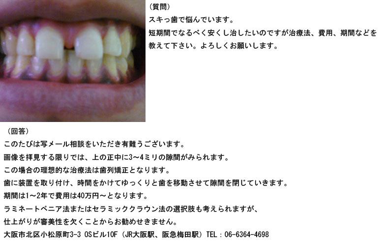 (写真)スキっ歯で悩んでいます。短期間でなるべく安くし治したい