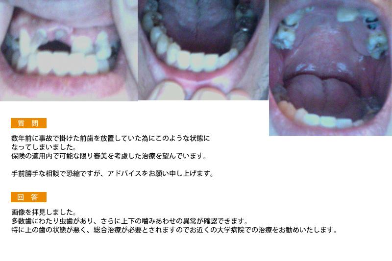 (写真)事故で掛けた前歯を放置していた為にこのような状態に