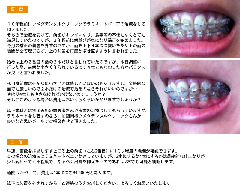 (写真)矯正後に、歯の隙間が全て埋まらず