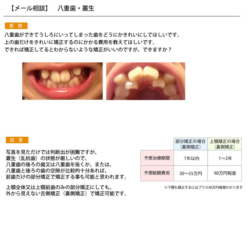後ろに引っ込んだ八重歯…上の歯だけ矯正したい