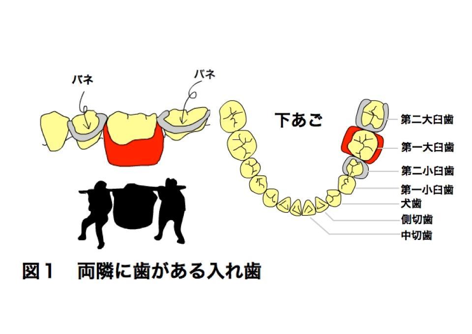 どうして入れ歯が痛むの?
