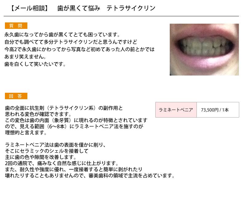 (写真)永久歯の歯が黒い・・・テトラサイクリン?
