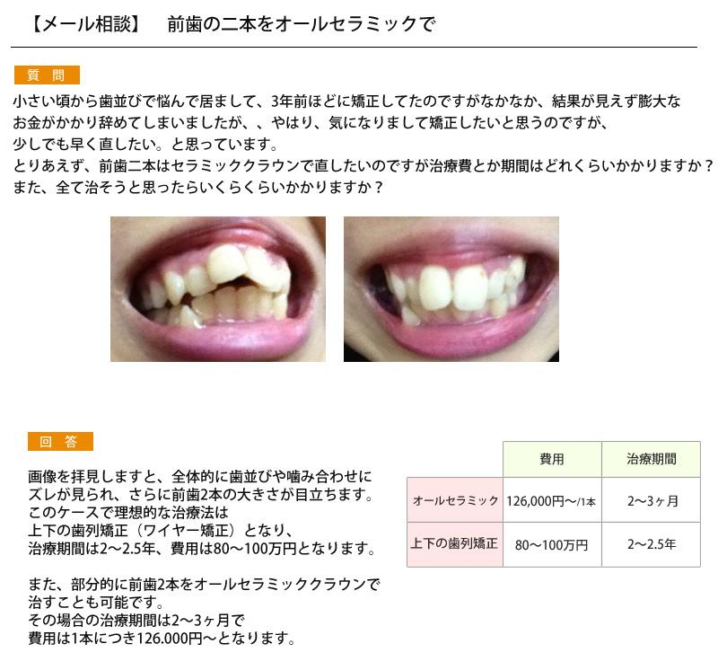 (写真)歯並びに悩み、前歯の二本をオールセラミックで?