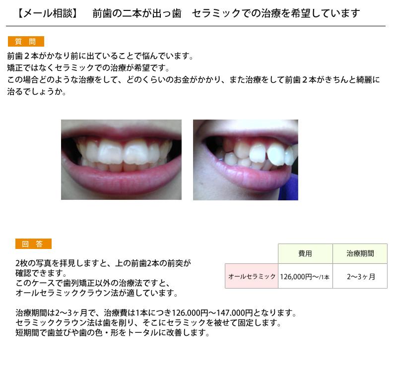 (写真)前歯の二本が出っ歯 セラミックでの治療を希望