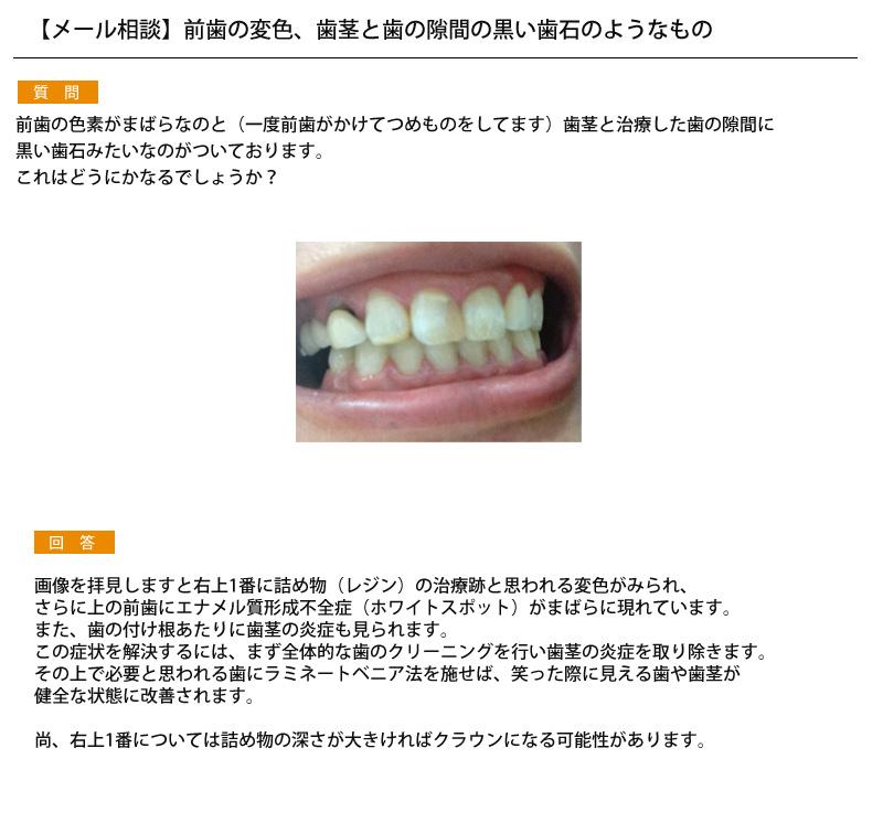 (写真)前歯の変色、歯茎と歯の隙間の黒い歯石のようなもの