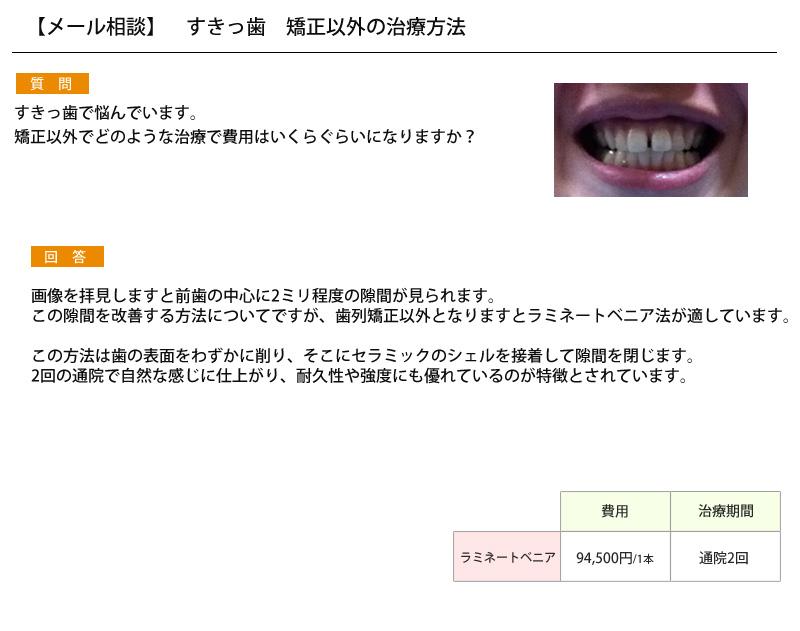 (写真)すきっ歯 矯正以外の治療