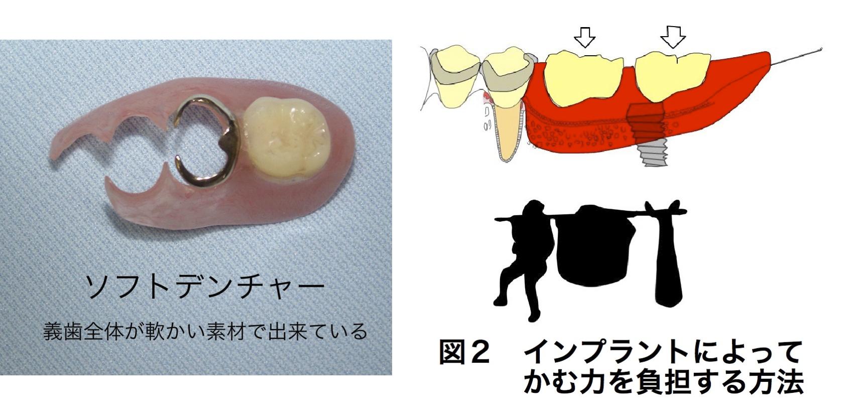 どうして入れ歯が痛むの?(治療編)