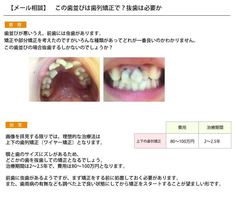 (写真)この歯並びは歯列矯正で?抜歯は必要か