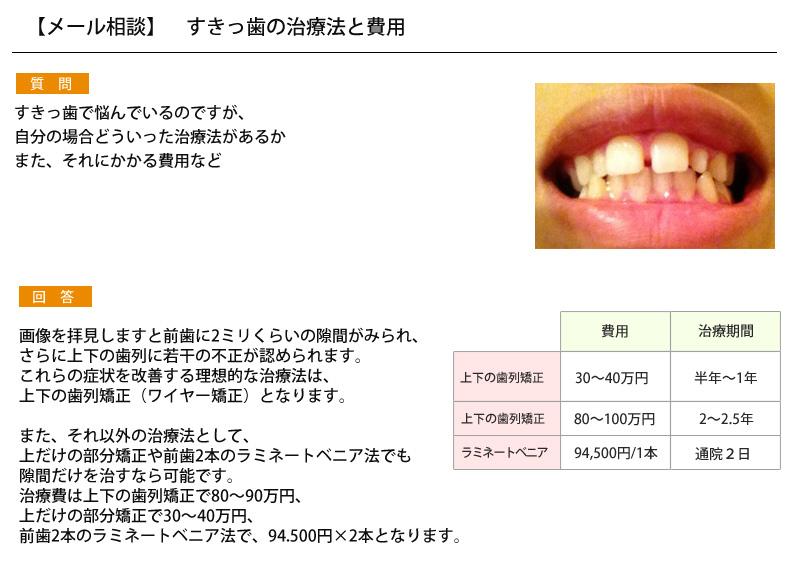 (写真)すきっ歯の治療と費用