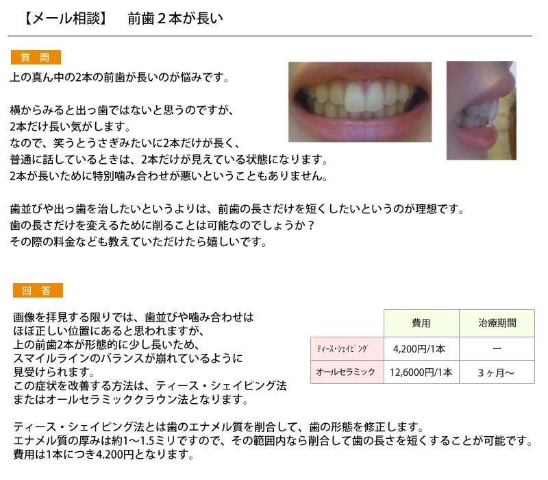 (写真)前歯2本だけが長いので、前歯の長さだけを短くしたいが