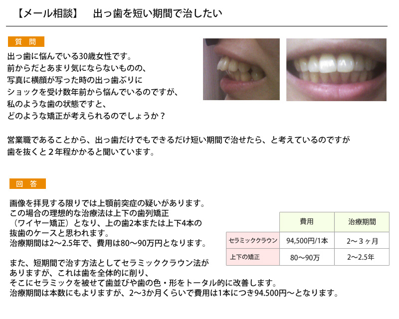 (写真)出っ歯を短い期間で治したい