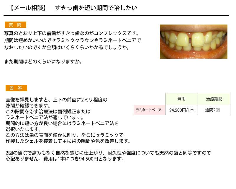 (写真)すきっ歯を短い期間で治したい