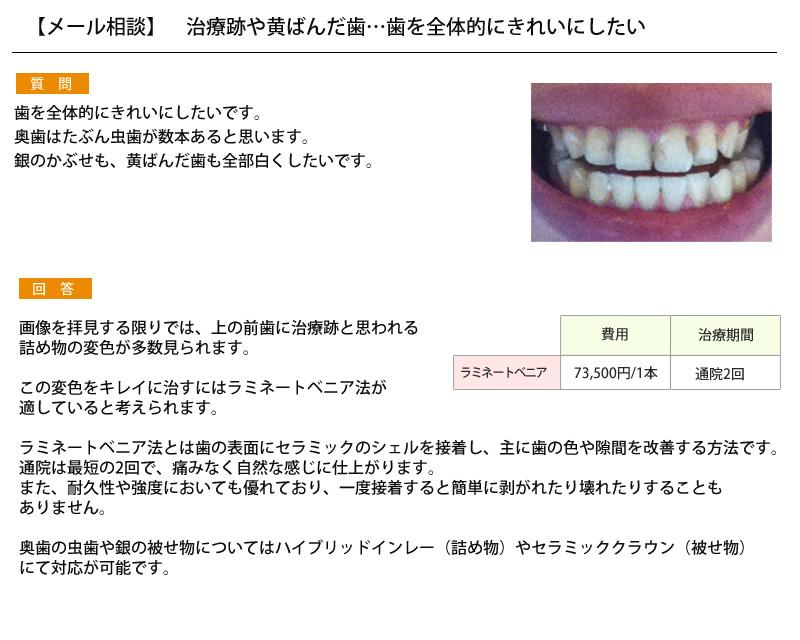 (写真)治療跡や黄ばんだ歯…歯を全体的にきれいにしたい