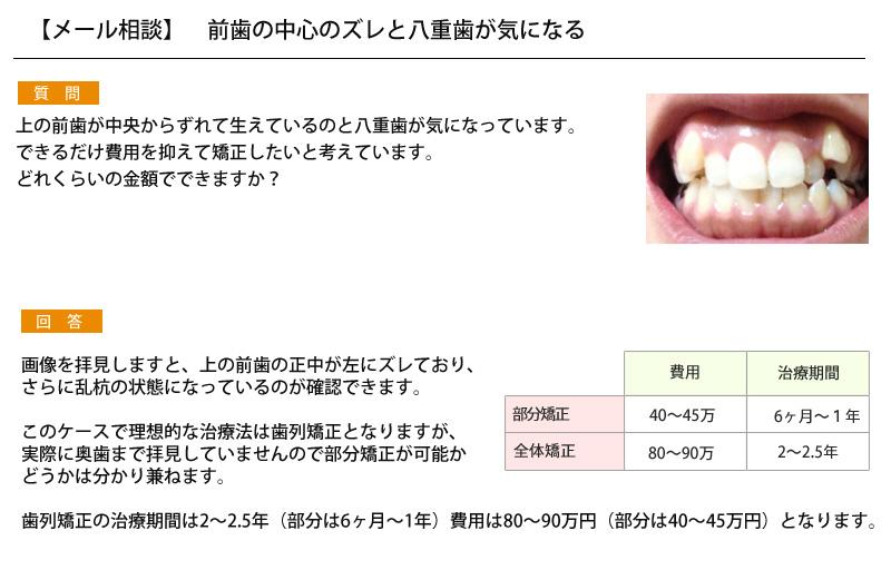 (写真)前歯の中心のズレと八重歯が気になる