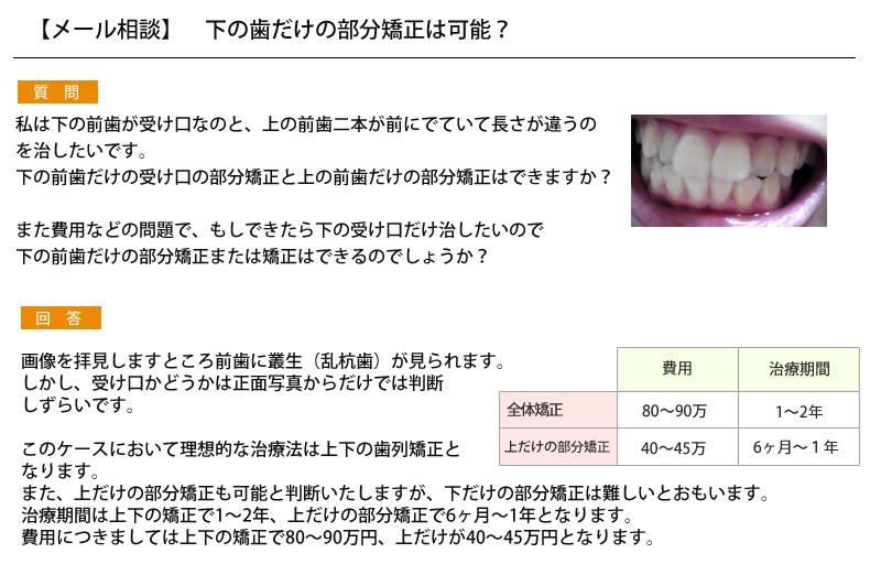 (写真)上の前歯または下の前歯だけの部分矯正は可能か?
