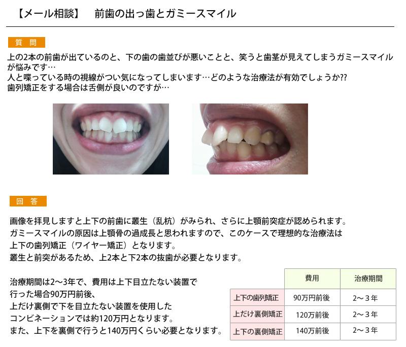 (写真)前歯の出っ歯とガミースマイル
