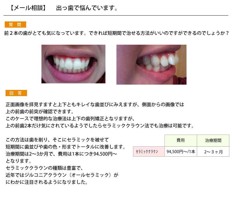 (写真)出っ歯で悩んでいます。