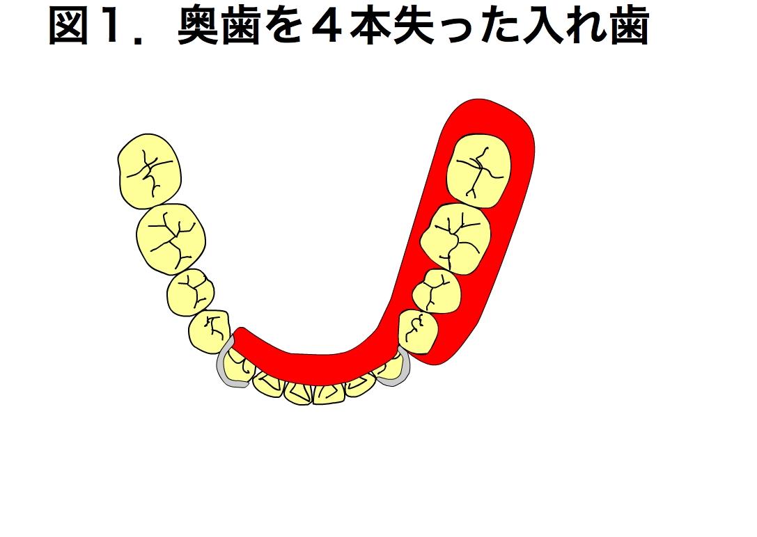 「インプラント × 入れ歯 = コスト削減」