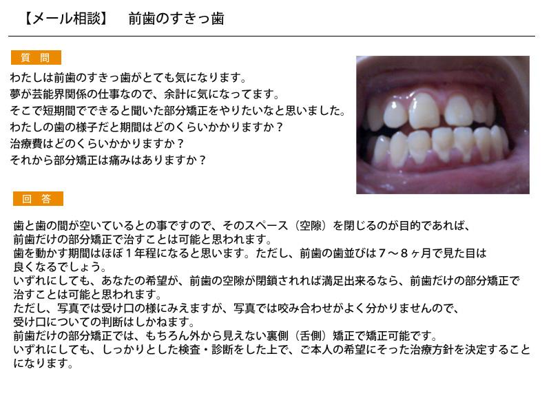 前歯のすきっ歯