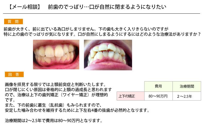 (写真)前歯のでっぱり…口が自然に閉まるようになりたい