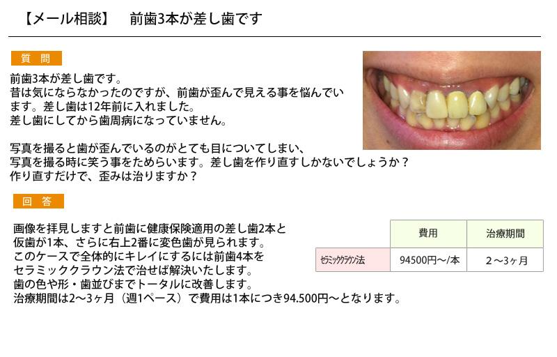 (写真)前歯3本が差し歯です。