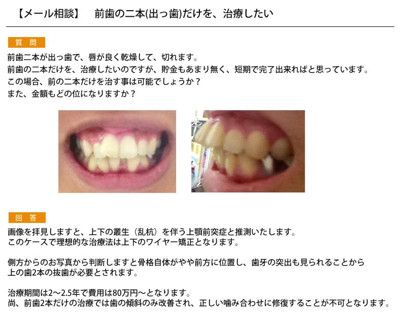 (写真)前歯の二本(出っ歯)だけを、治療したい