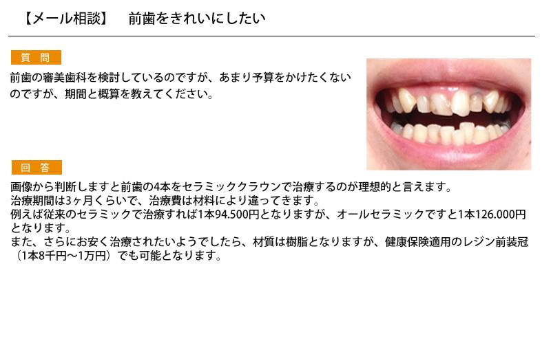 (写真)審美歯科で前歯をきれいにしたい