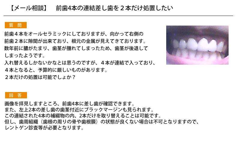 (写真)前歯4本の連結差し歯を2本だけ処置したい