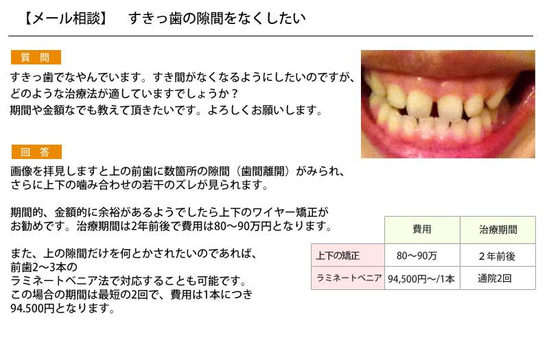 (写真)すきっ歯の隙間をなくしたい
