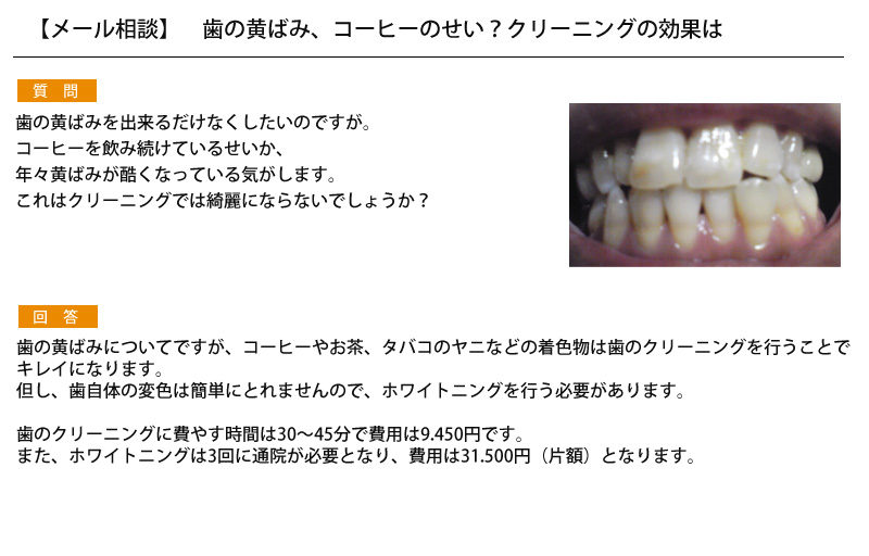 【メール相談】 歯の黄ばみ、コーヒーのせい?クリーニングの効果は