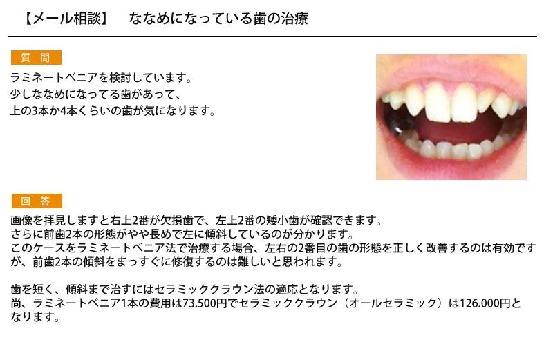 (写真)ななめになっている歯の治療
